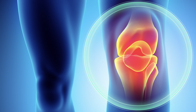 Patellofemoral Pain Uncovered – Claire Robertson